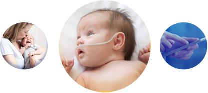 neonatology-baby